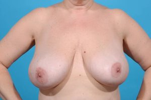 front shot of patient pre-surgery for breast reduction