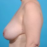 left profile of patient pre-surgery for breast reduction