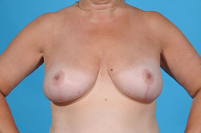 front view of patient after breast reduction