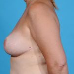 left profile of patient after breast reduction