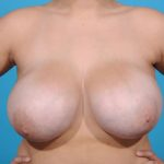 breast reduction before front view