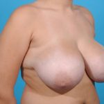 breast reduction before right front view