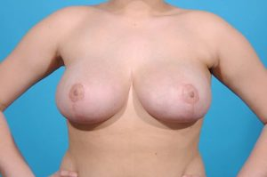 breast reduction after successful operation front view