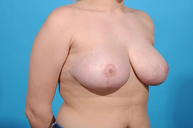 breast reduction after pic front right side