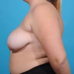 breast-reduction left side view