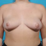 breast-reduction front view