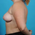 breast reduction after profile image left side